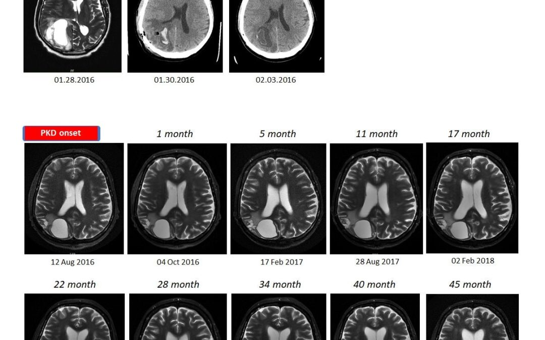 4-year long progression-free and symptom-free survival of a patient with recurrent glioblastoma multiforme